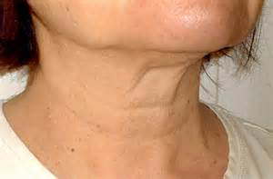 all about skin on your neck picture 11