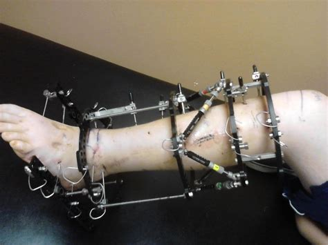 procedure straightens h on nbc picture 6