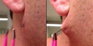 what's good for ingrown hair after waxing picture 5