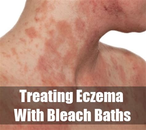 bleach baths and acne picture 6