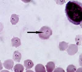 feline blood parasites that cause liver failure picture 1