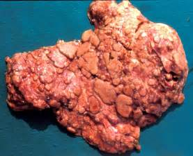 daily toxicology hoodia picture 13