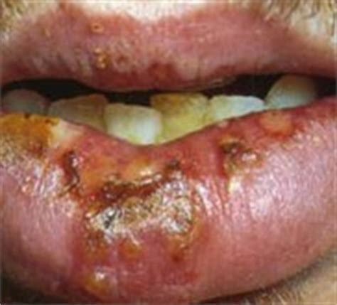 what does a herpes soar look like picture 15
