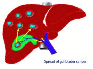 incidence of gall bladder polyp picture 10