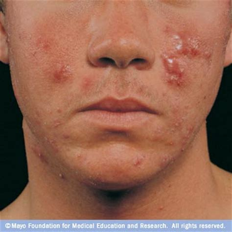 cystic acne picture 6