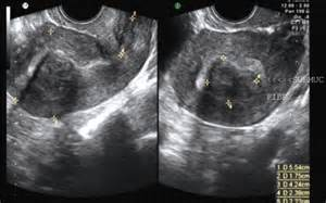doppler ultrasonography gall bladder new york facilities picture 9