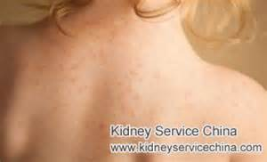 kidney disease and hives picture 2