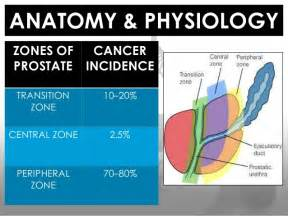 Prostatic cancer radiation picture 1