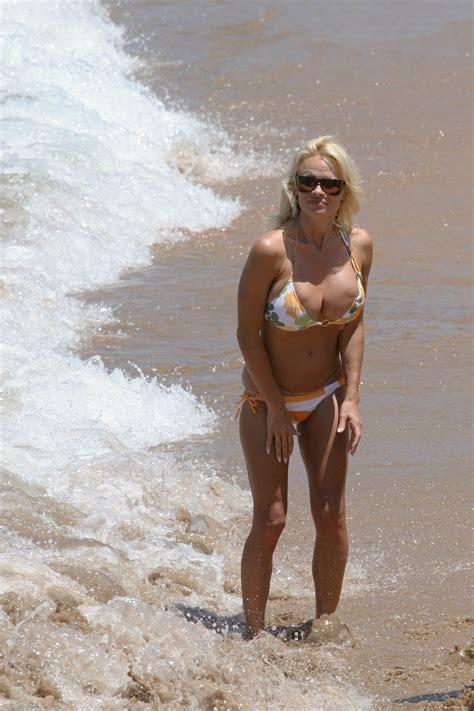 breast augmentation mishaps picture 3
