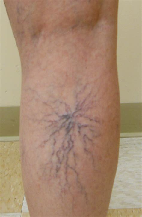 small red spider veins under skin of monis picture 9