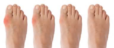 toe joint pain picture 19