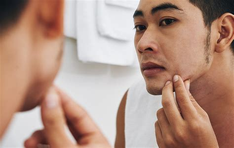 dermatologist shots that cause problems in men picture 1
