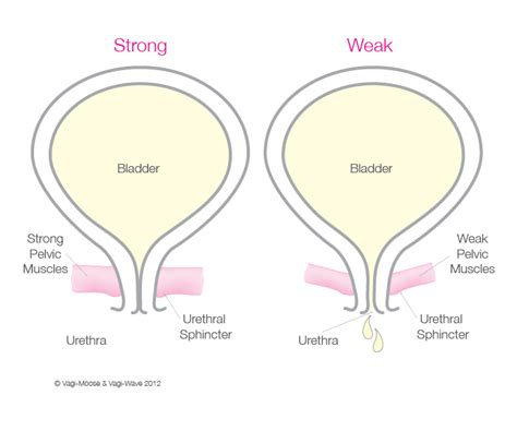 causes of a weak bladder picture 6