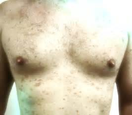 pictures of skin cancer on chest picture 1