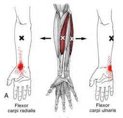 flex carpi radialis muscle picture 18