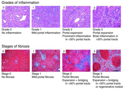 liver biopsy picture 2