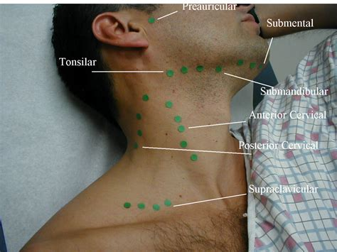 can can thyroid cause swollen lymph nodes in picture 2