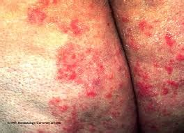 fungal infection and crawling sensation picture 1