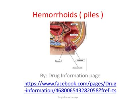 pictures of hemorrhoids picture 1
