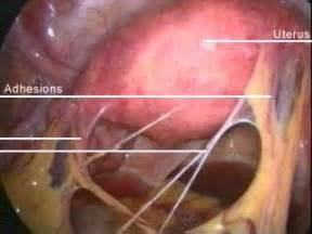tampon in colon picture 3
