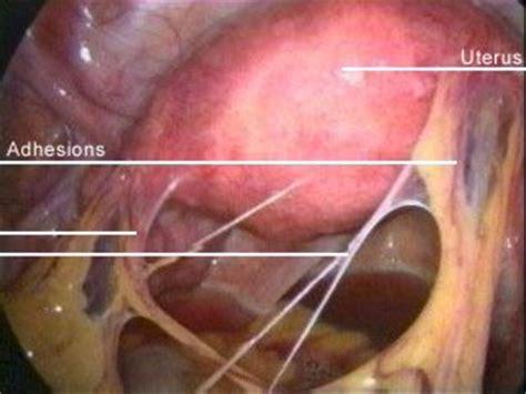 tampon in colon picture 11