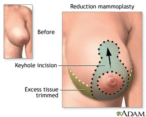 joint pain after breast enlargement herbs picture 23
