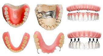 different types of false teeth picture 11