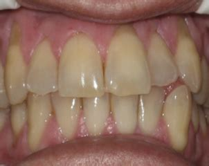 teeth whitening arlington picture 9