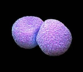 bacterial pneumonia picture 3