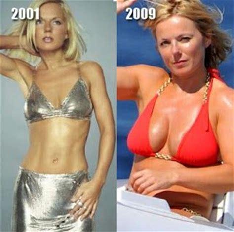 botex breast enlargement picture 13