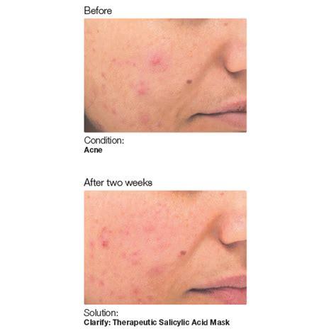acne ling tukwila wa picture 5