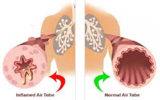 lung constrict treatment picture 15