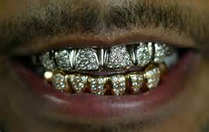 dimond crown teeth picture 15