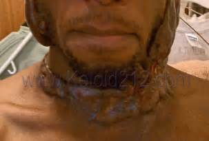 treatment of keloid picture 9