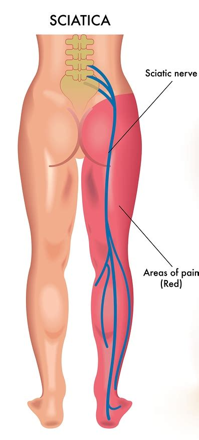 muscle ache pain picture 11