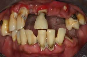 cigars teeth picture 5