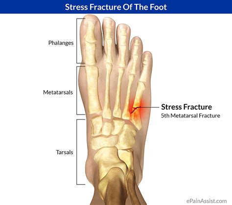 joint ball foot pain picture 9