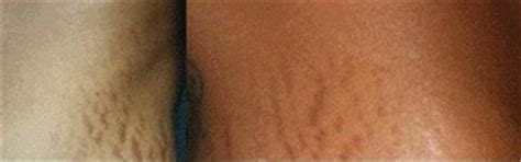 will tanning make stretch marks worse picture 12