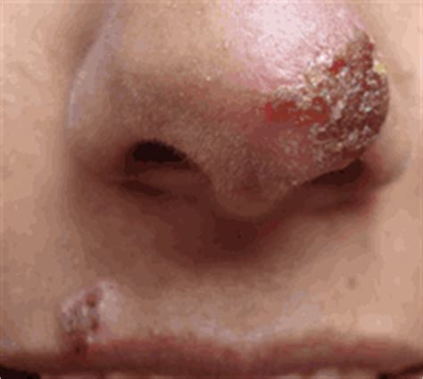 how long do herpes outbreaks last picture 5