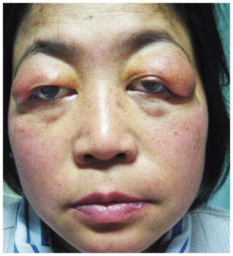 meaning of skin lesions picture 10