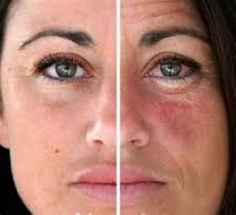 alcoholic, face acne and liver damage? picture 6