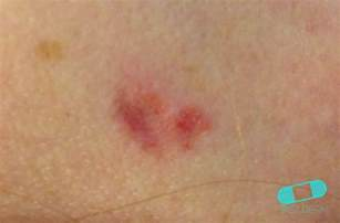 skin growth icd picture 6