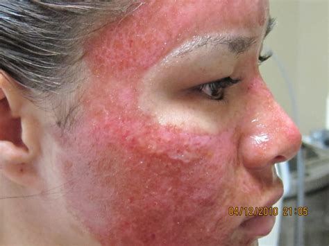 susan weed cystic acne picture 9