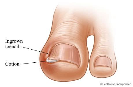self removal of ingrown toenail picture 6