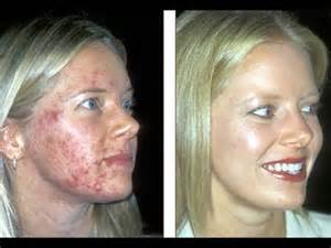remove acne scars picture 9
