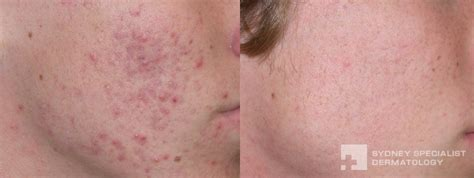 fraxel for acne scars picture 10