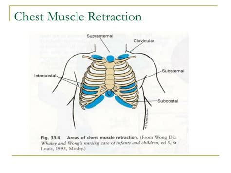 abdominal muscle pulls picture 11