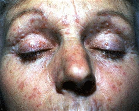 lupas ans acne picture 4