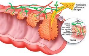 colon tumor picture 7