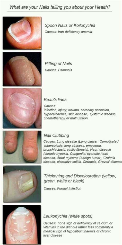 graves disease and hair loss picture 3
